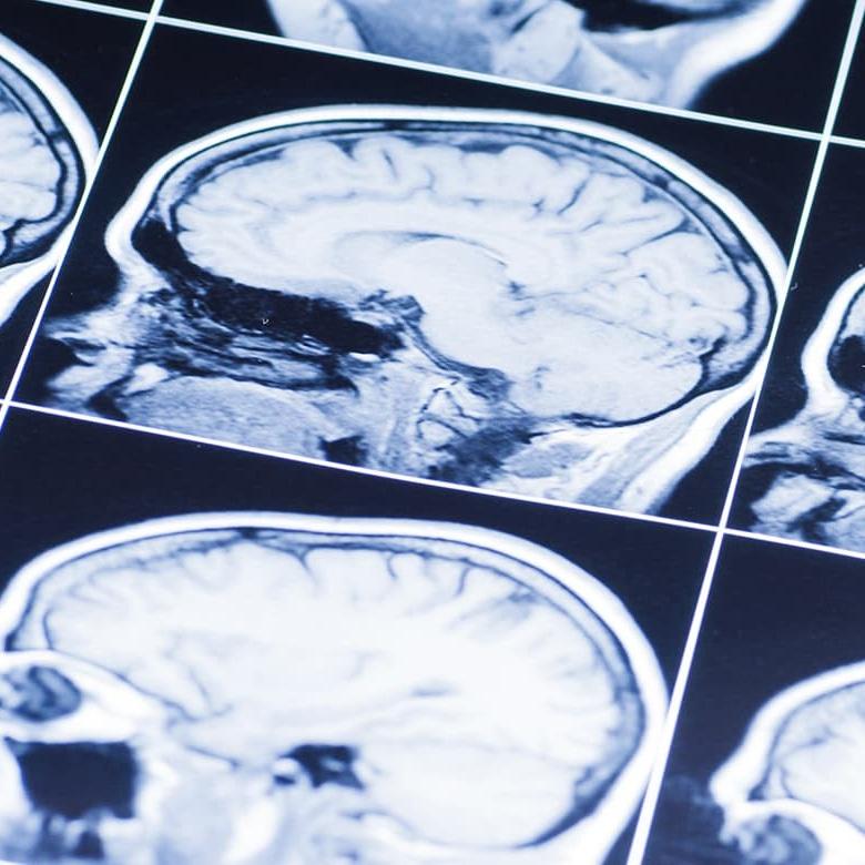 Brain Injuries Image